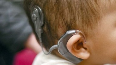 cochlear implant in a kid
