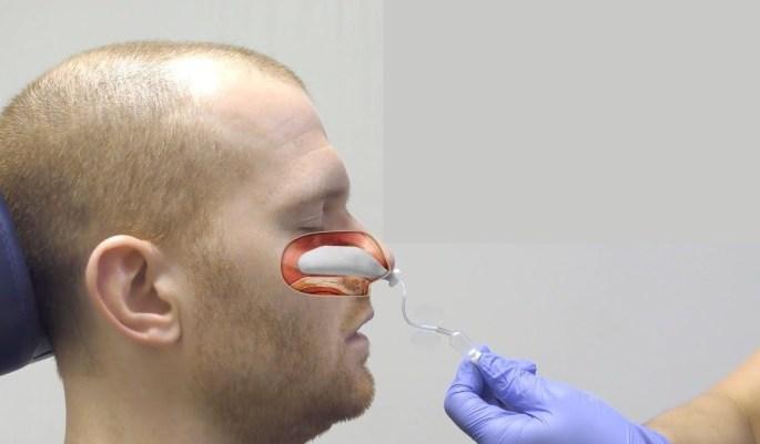 Nasal packing to stop nose bleed