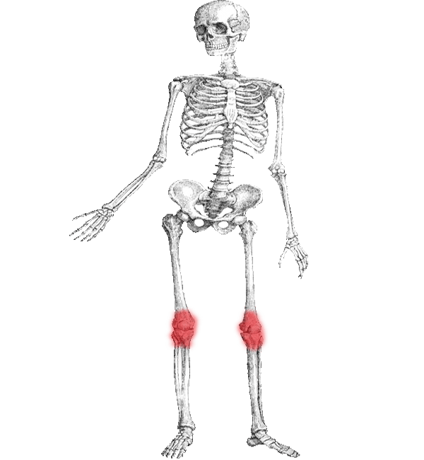 Rheumatoid Arthritis (RA) Osteoarthritis (OA) helped by