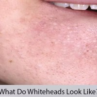 What Do Whiteheads Look Like
