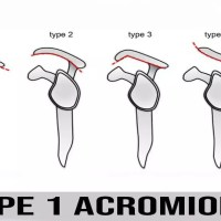 Type 1 Acromion