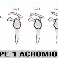 类型 1 肩峰