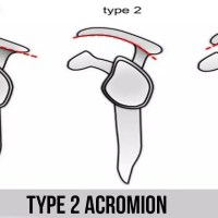 类型 2 肩峰