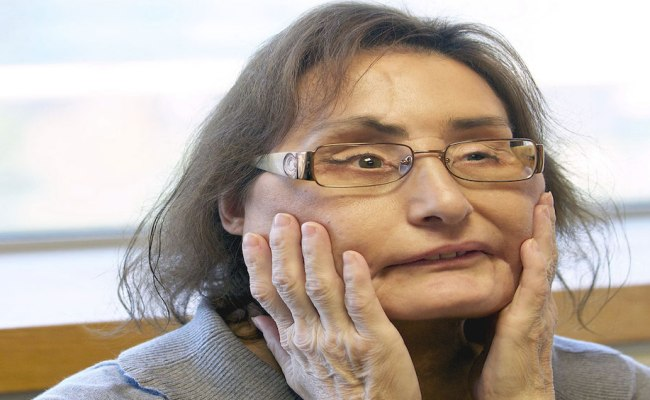 First Partial Face Transplant Recipient In The Us Dies
