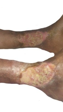 Ulcers in Rheumatoid Arthritis