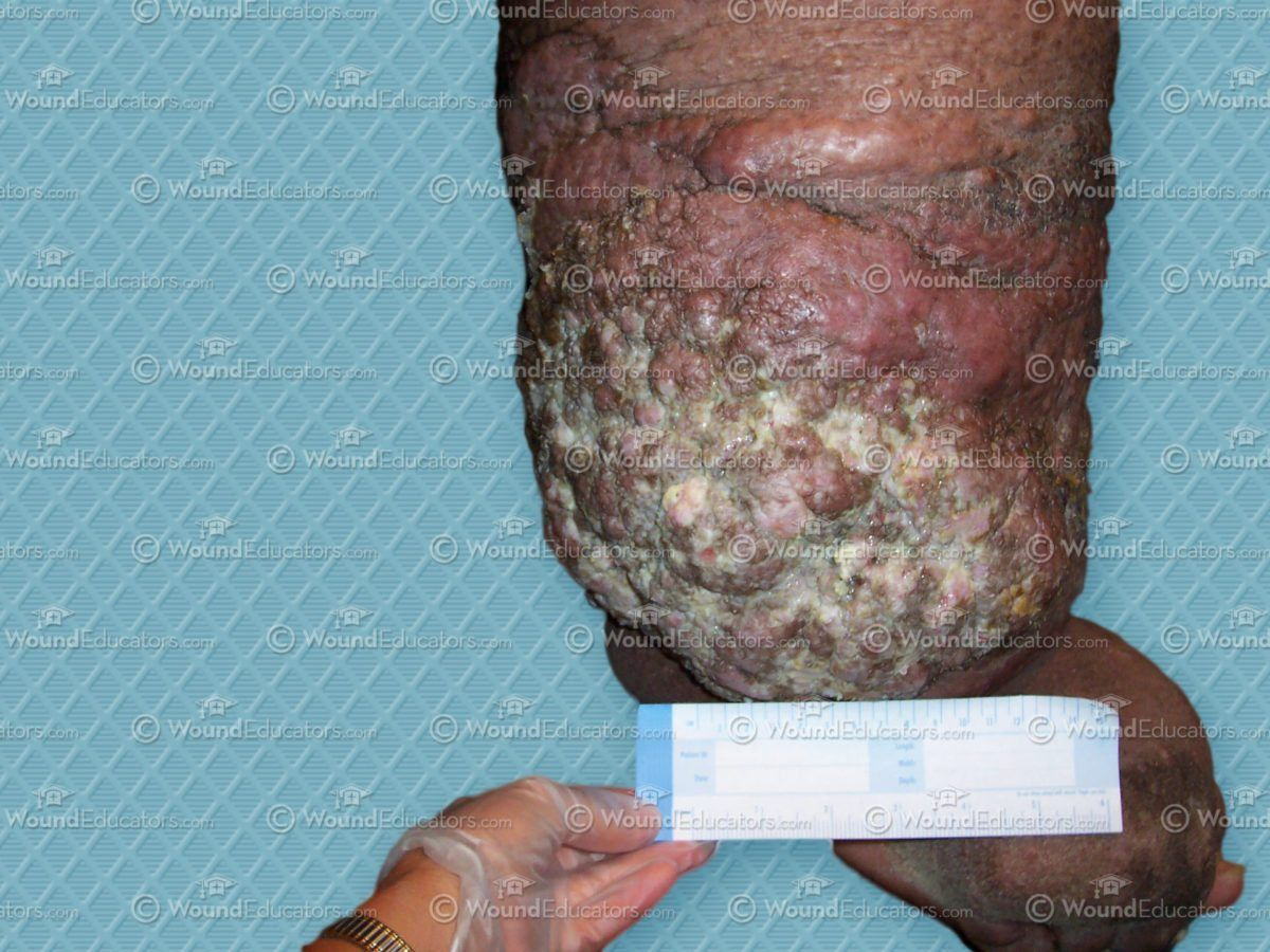 Lymphedema Classification and Characteristics  Wound Care