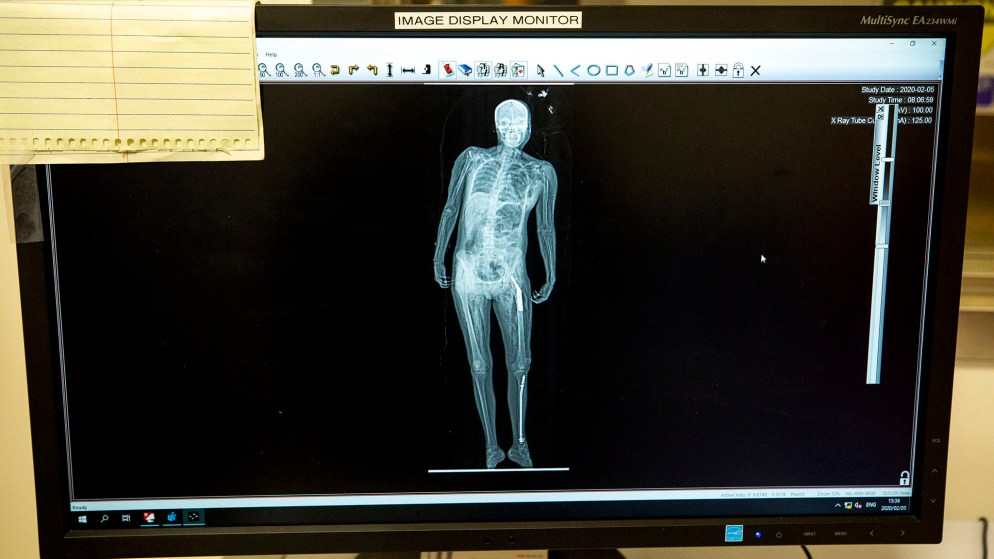 A body scanned in the Lodox full-body imaging system newly installed at Denver's Office of the Medical Examiner. Feb. 5, 2020. (Kevin J. Beaty/Denverite)