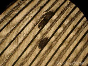 Durch ein Mikroskop betrachtet, werden Federmilben im Gefieder deutlich sichtbar, © Greifvogelhilfe.de
