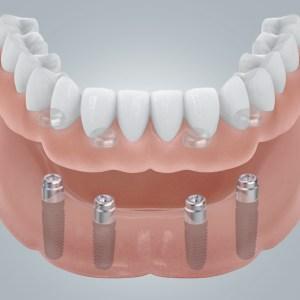 4 Zahninplantate mit Locatoren