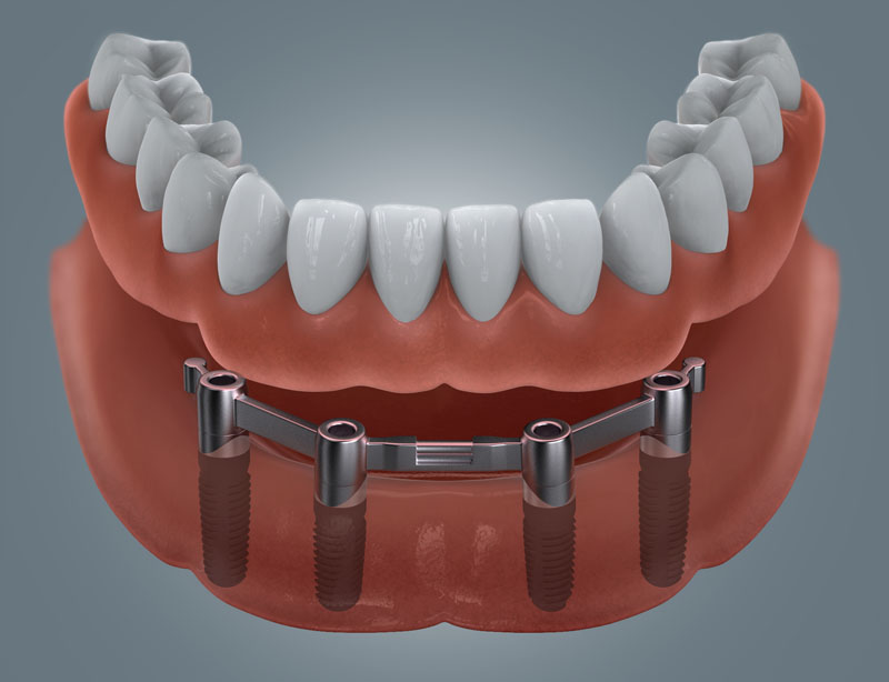 4 Zahnimplantate mit gefräßten Steg