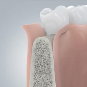 Öffnung des Zahnfleischsaumes