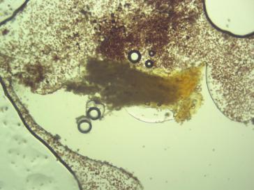 Physarum globuliferum-0006