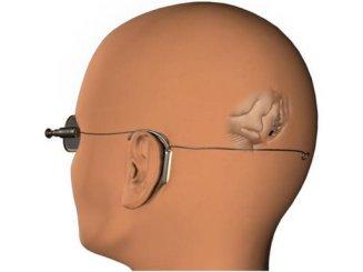 ImplantSawan