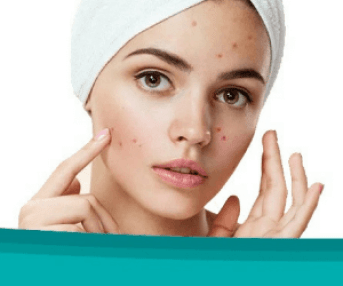 removing acne instantly