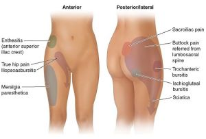 causes-of-hip-pain-both-sides