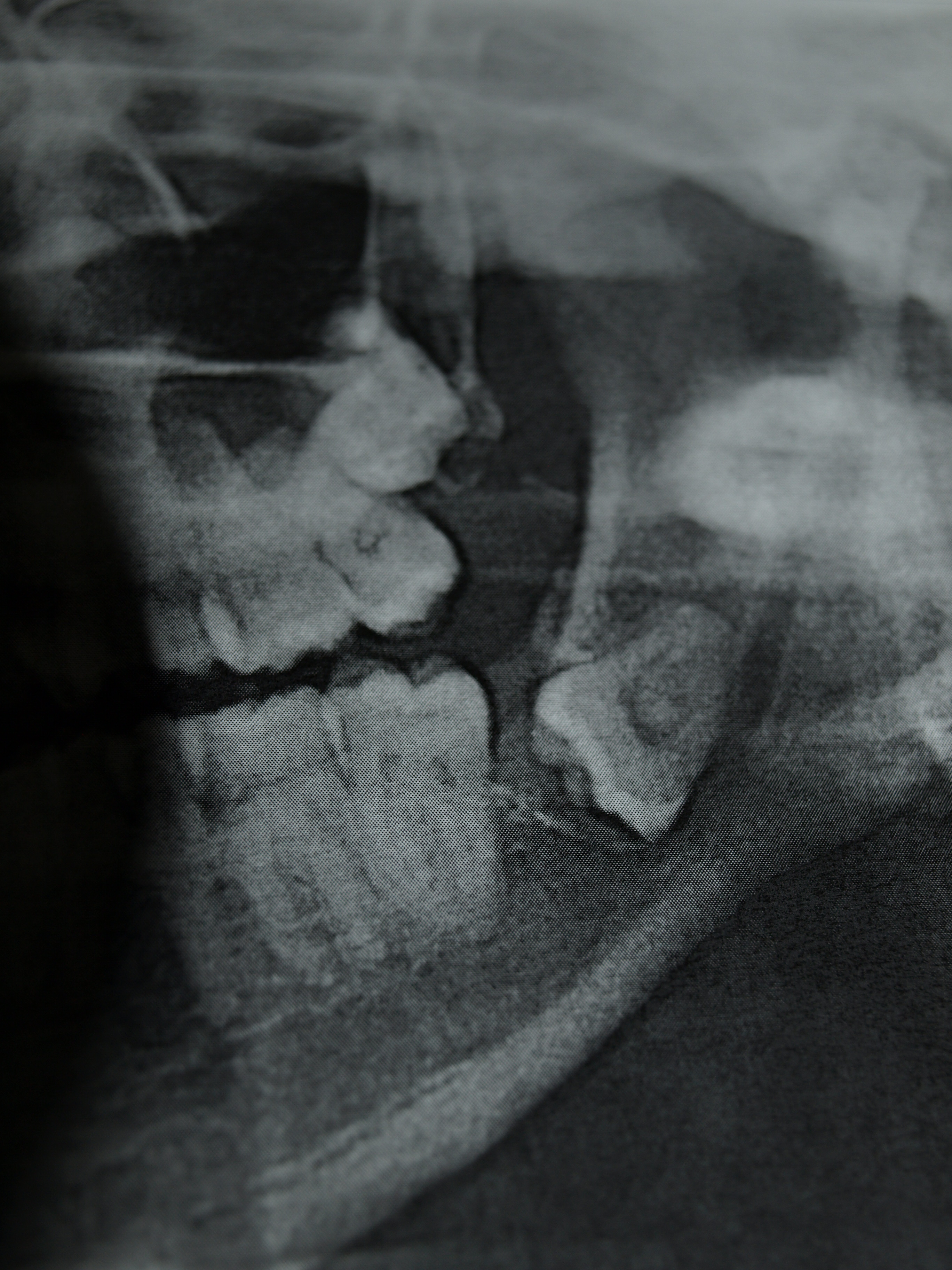 See if you can find the crazy tooth