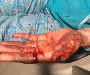 La hija de Abril comparte imágenes de la violencia que padeció su madre