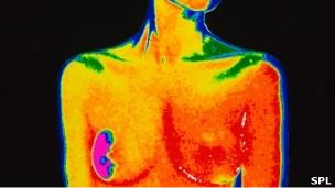 Scan de cáncer de pecho