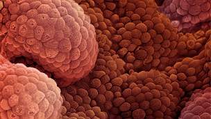 Células de próstata cancerosas