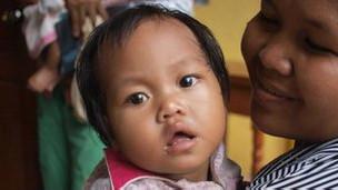 Paciente en clínica de Camboya