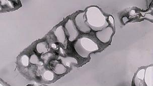 Bacteria boliviana