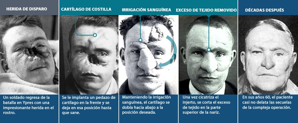 Las etapas de reconstrucción facial de un veterano de la Primera Guerra Mundial