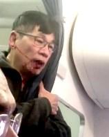 華裔醫師陶成德不願下機,被聯航召來航警粗暴地強行拖走。同機乘客將航警施暴濺血過程拍下上傳社群網站。p1156-a4-02a