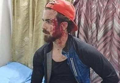 A 24 year old Muslim Kashmiri attacked by Hindus