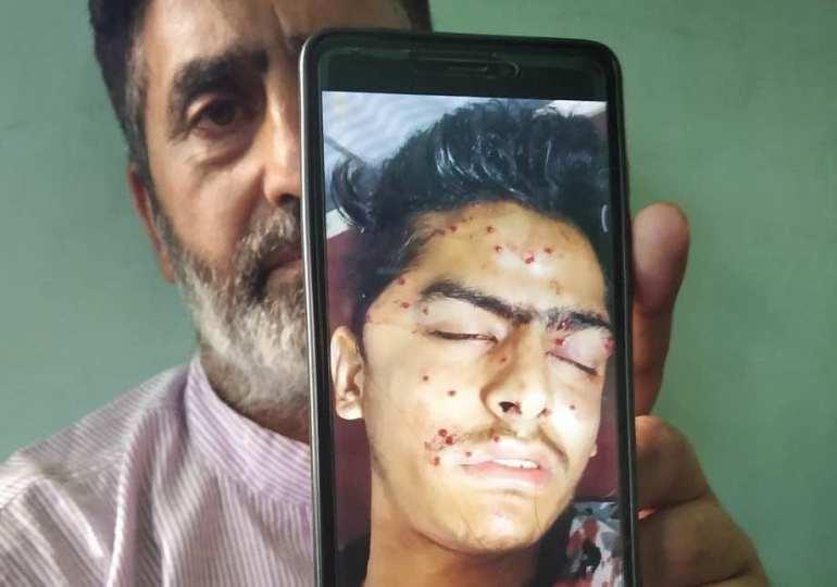 Kashmiri teen dies of pellet, tear gas shell wounds