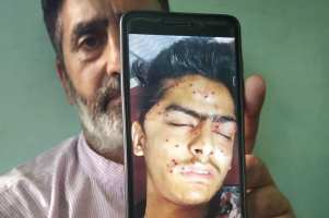 Kashmiri teen dies of pellet, tear gas shell wounds