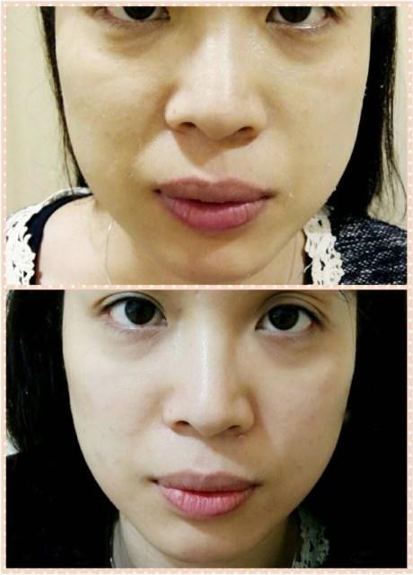 益曼中醫24針小針美容,原來不止醫美可以讓人變美麗 @吳大妮。Annie