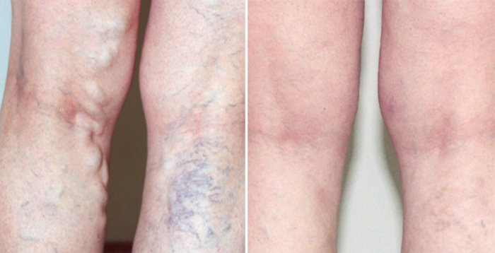 Vein Specialists Of Arizona (VSA) Announces: New State-of
