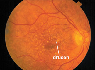 xRMD News Macular Degeneration can be Treated with