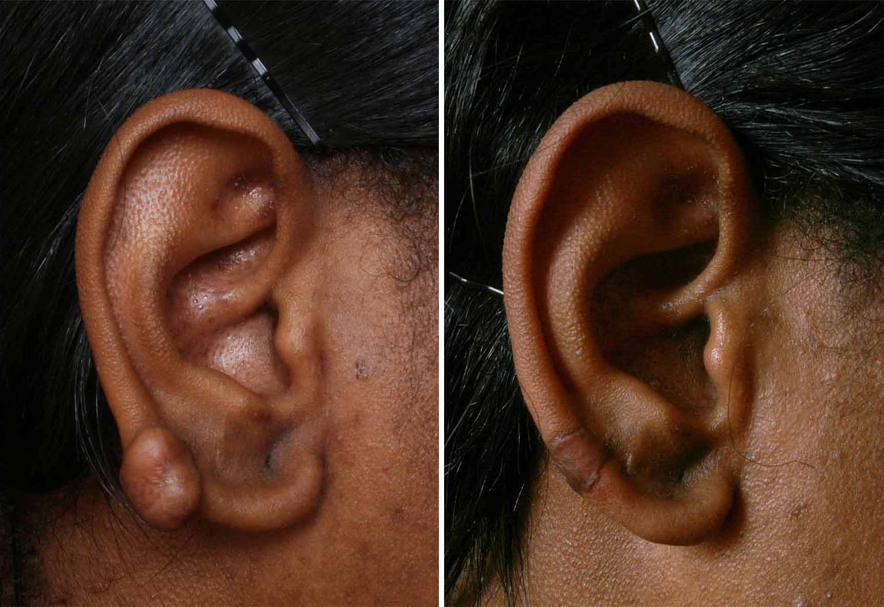 Keloid Treatment With CryoShape Is Now Available in
