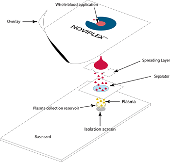 Shimadzu Introduces Noviplex™ Cards for Accelerated Blood