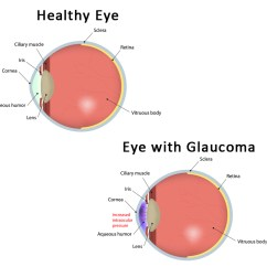 Blind Eye Diagram 1998 Jeep Wrangler Ignition Wiring Renowned Surgeon Dr. Stewart Shofner Debunks Top Five Myths About Glaucoma