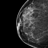 Should You Get a More Expensive, 3‑D Mammogram?
