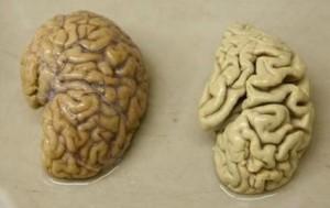 one-hemisphere-of-a-healthy-brain-l-is-pictured-next-to-one-hemisphere-of-a-brain-of-a-person-sufferin-the-neuropsychiatry-division-of-the-belle-idee-university-hospital-in-chene-b.jpg 430×273 pixels