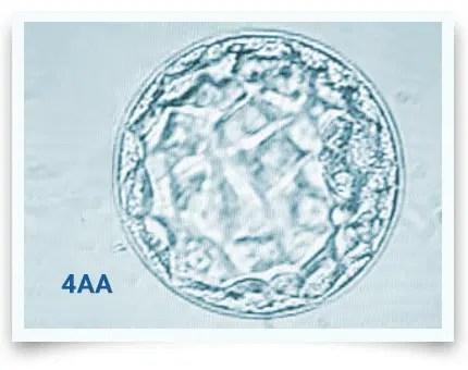 Embryo Grading & Success Rates: The Sensible Guide
