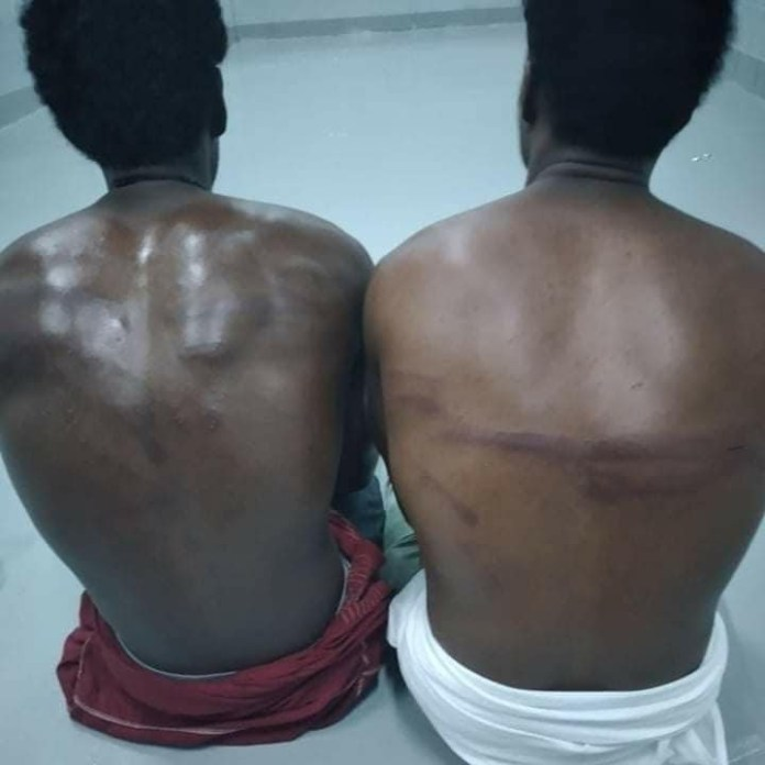 Migrants are scarred following beatings by the guards