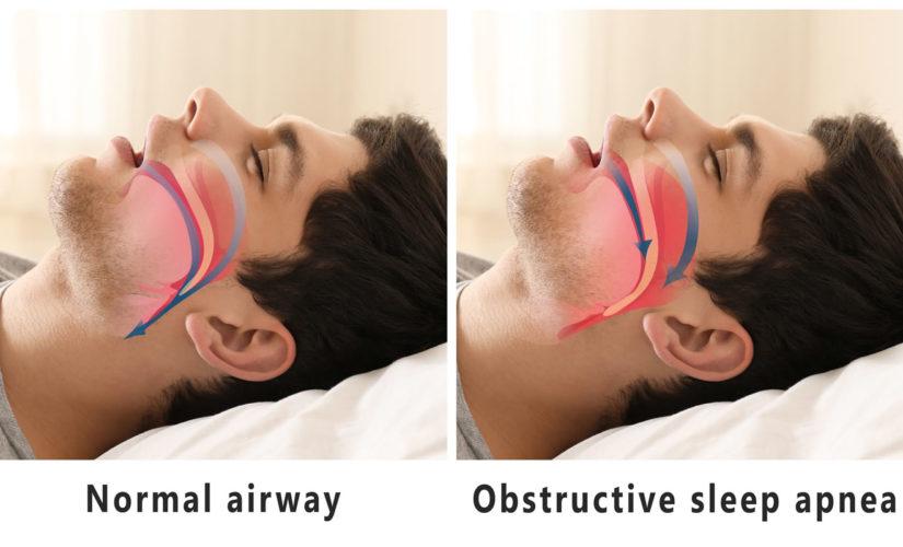 sleep apnea 825x500 - SLEEP APNEA: Introspect, Side Effect, and Solution