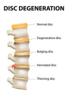 bulging disk treatment, and treatments for a herniated disk or vertebrae out of alignment, are all muscle tension problems that are solved by releasing muscle spasms
