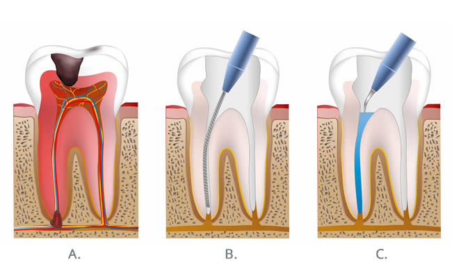 Root Canal Treatment Crouch End | 186 Park Road Dental Practice