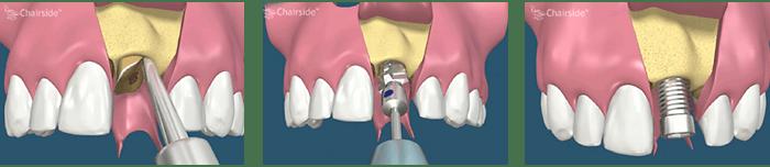 Prosedur Immediate Dental Implant- Global Estetik Dental Care
