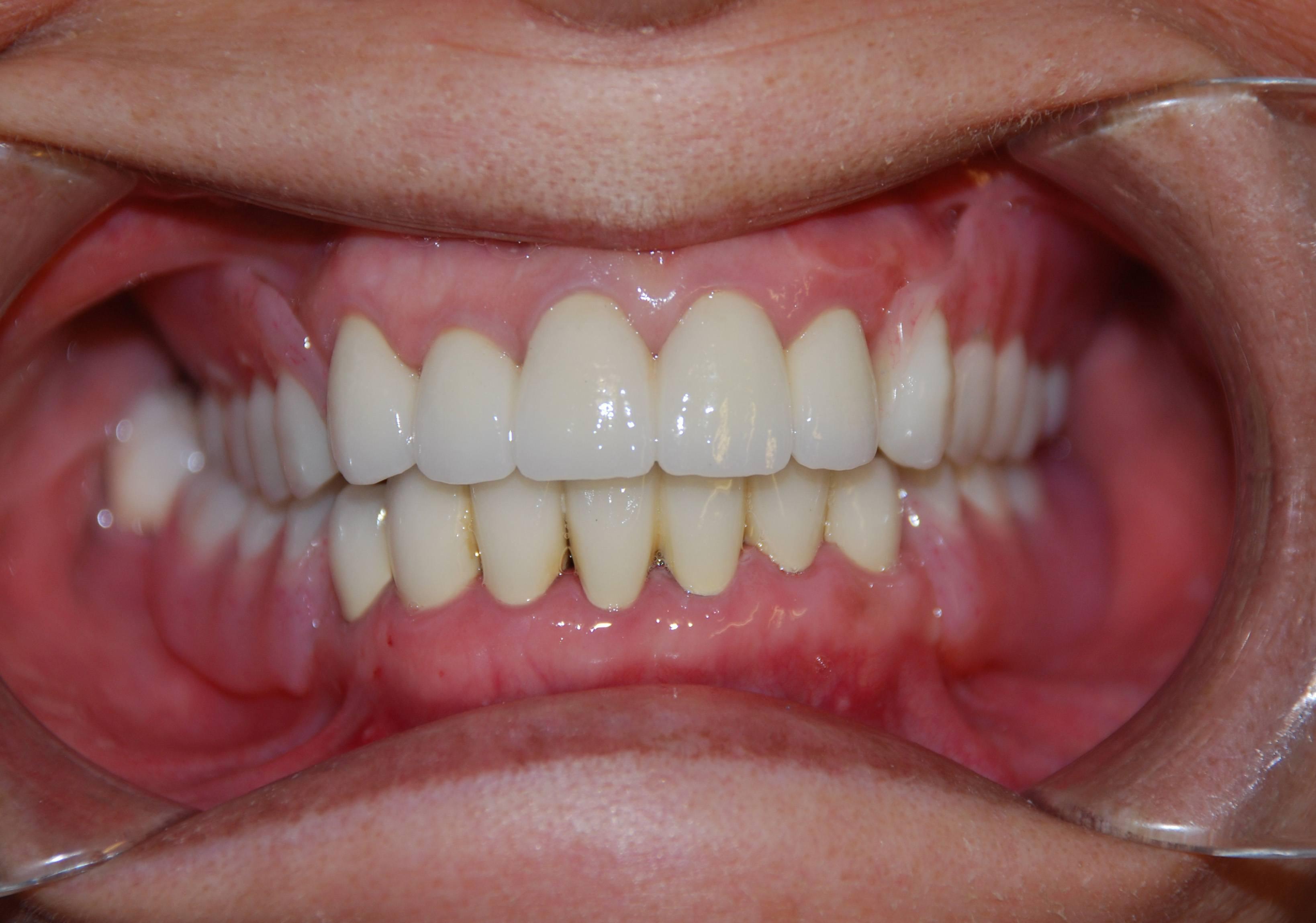 Dentures  19th Avenue Dental