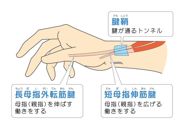 「腱鞘炎」の画像検索結果