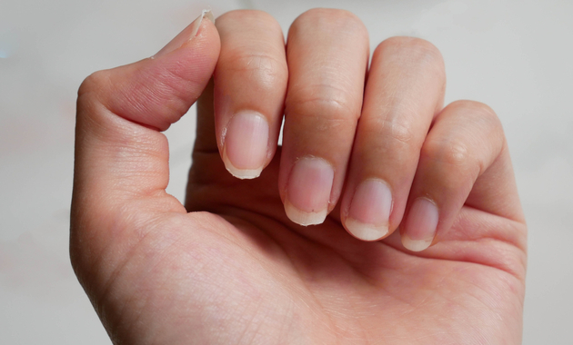 why do nails become brittle