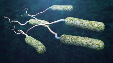 بكتيريا الكوليرا