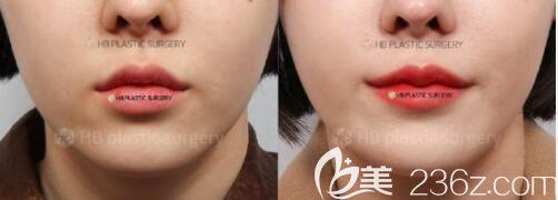 韓國hb李炫直唇線式切開縮短人中避免疤痕產生_最熱整形行業新聞話題 - 美佳網