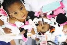 Photo of Sœurs siamoises séparées à Lyon: Une des petites filles va être opérée du cœur
